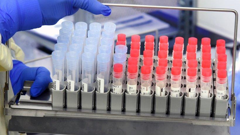 Newsblog-Corona-Bald-Impfung-f-r-alle-Impfreihenfolge-soll-fallen